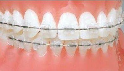Falcon Ligatury Uno - Gumki ortodontyczne 26 szt. - przezroczyste